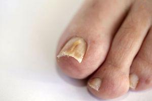 За сколько можно вылечить грибок ногтей
