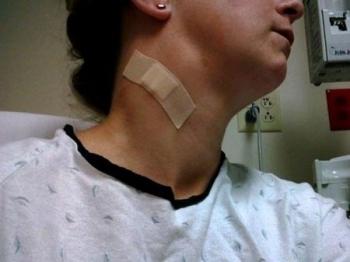 Как хирургически убирают воспаление лимфоузла
